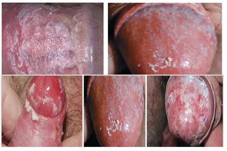 Bệnh nấm Candida đường sinh dục